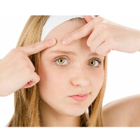 Acne care in Homoeopathy